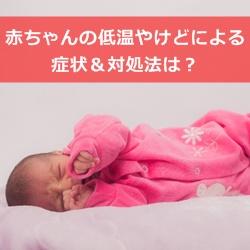 赤ちゃんの低温やけどによる症状&対処法は?対策も紹介