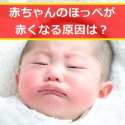 赤ちゃんのほっぺが赤いのは病気のサイン?考えられる原因まとめ