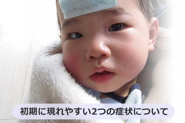 熱を出している赤ちゃん