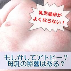 乳児湿疹がよくならない!もしかしてアトピー?母乳の影響はある?