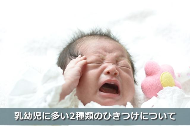 ひきつけをしている赤ちゃん